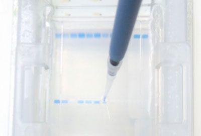 Electroforesis en gel de agarosa